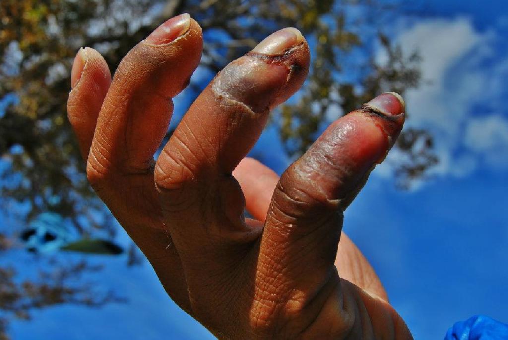 Eksempel på frostskadede fingre.